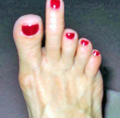funny foot